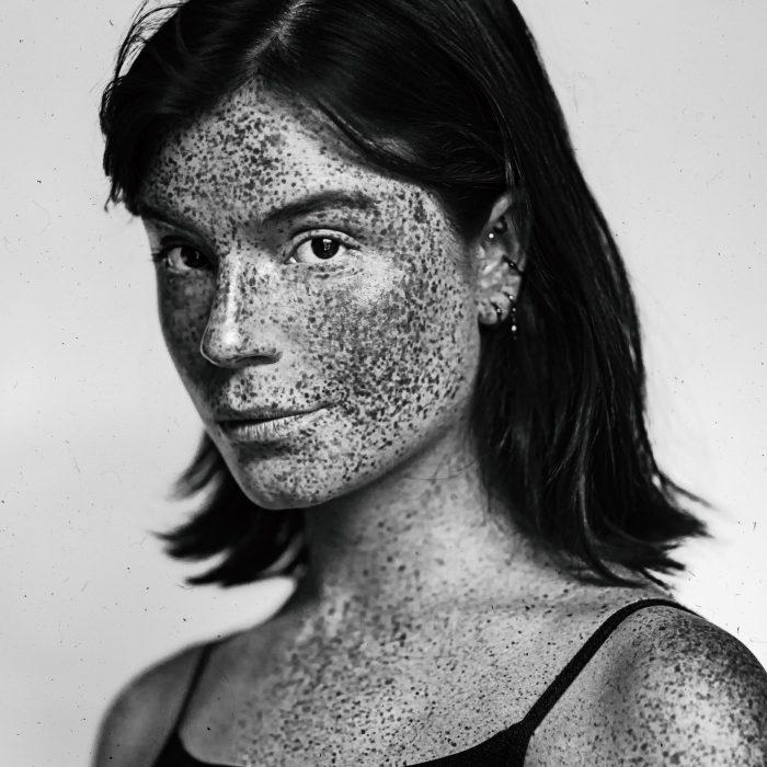 sam-eye-am-luca-hollestelle-black-white-freckles-girl-woman